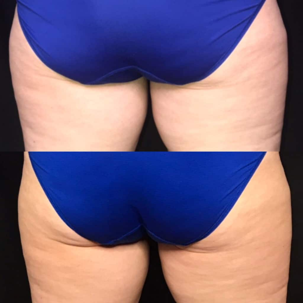 Before & after image of CoolSculpting patient at Be You Medical Spa