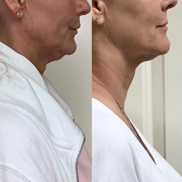 Before and after of Kybella Services at Be You Medical Spa.