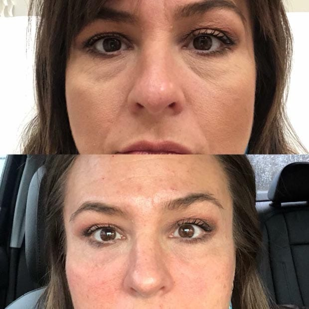Before and after of Injectable Services at Be You Medical Spa.