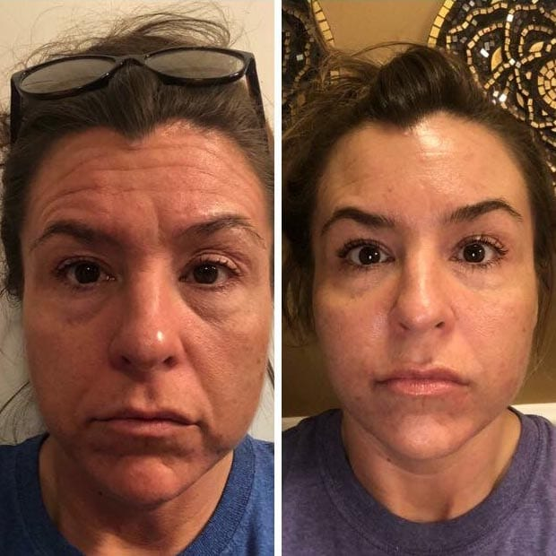 Before and after of Botox Injections at Be You Medical Spa.