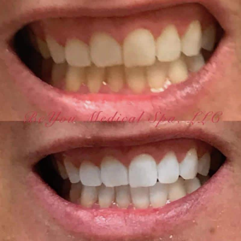 Before and after of teeth whitening at Be You Medical Spa.